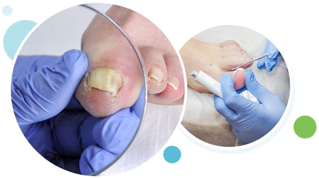 can toenail fungus spread internally