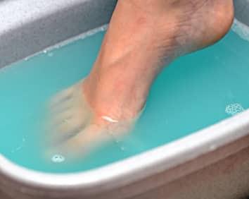 get rid of toenail fungus with bleach