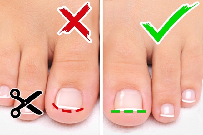 How To Get Toenails To Grow Straight